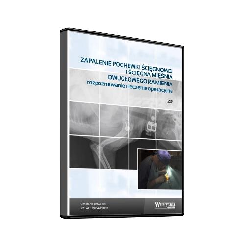 Zapalenie pochewki ścięgnowej i ścięgna mięśnia dwugłowego ramienia – rozpoznawanie i leczenie operacyjne